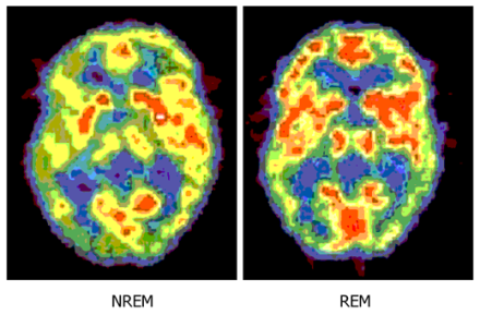 While there's no comparison in this shot for our brain when we are awake - the brighter colours indicate more activity, notice how much more active the brain in REM sleep is compared to non-REM source.